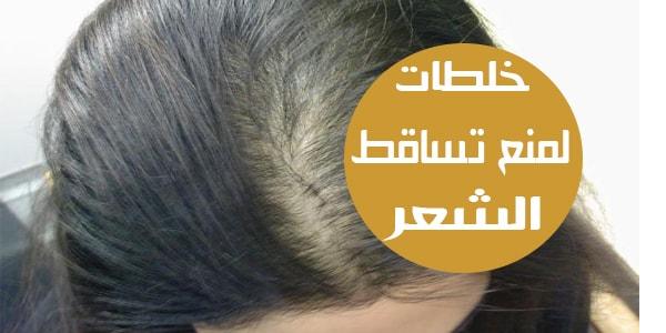 صورة خلطات لتساقط الشعر وتكثيفه , وصفات كتيرة هتساعد شعرك وهتقويه وتزود كثافته