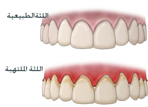 صورة علاج اللثة الملتهبة بالاعشاب , تجنب وقوع الاسنان
