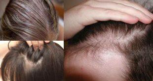 صور تقوية الشعر للرجال , قوي شعرك بعادات يومية بسيطة