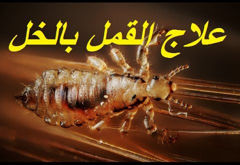 صور علاج القمل بالخل , حلول بسيطة بالخل للقضاء على حشرات القمل في الراس