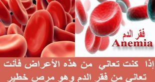 صور اعراض مرض فقر الدم , طرق معرفه مرض فقر الدم