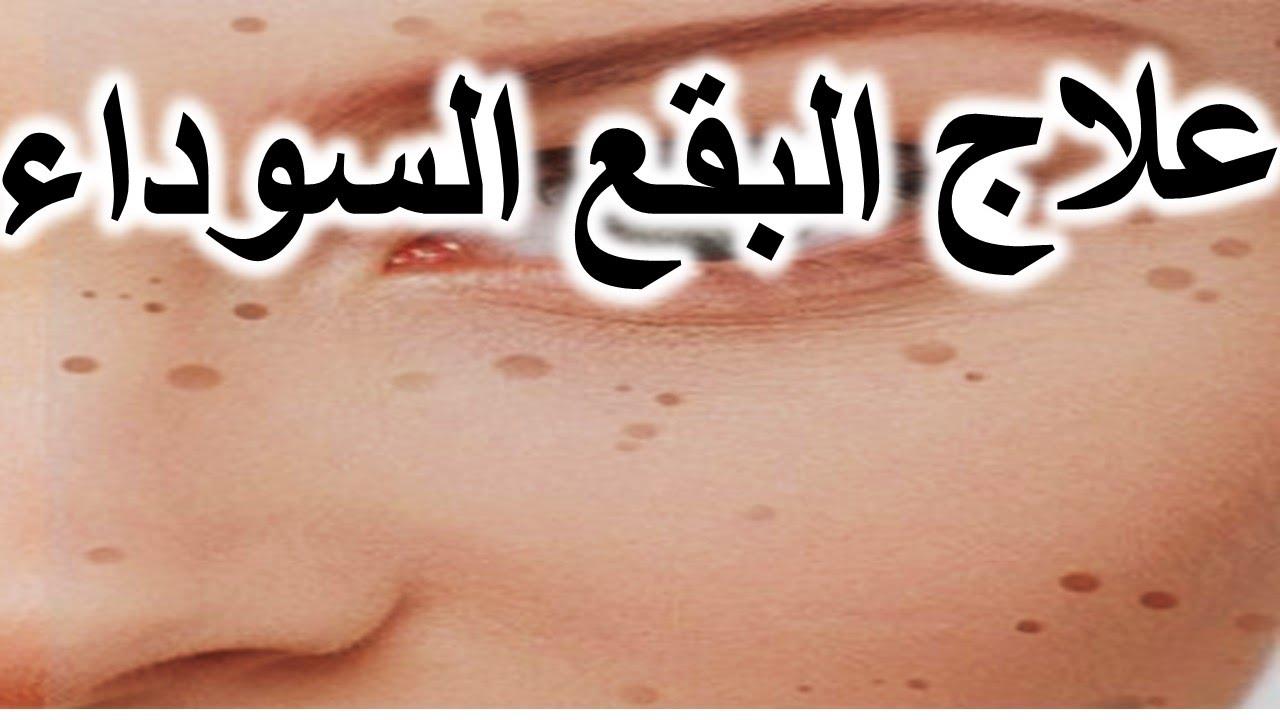 صورة طريقة التخلص من البقع السوداء في الوجه , احصلى على بشرة صافية خالية من العيوب