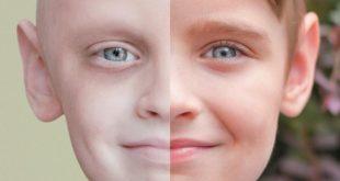 صور مقدمة عن السرطان , معلومات يجب ان تعرفها عن السرطان