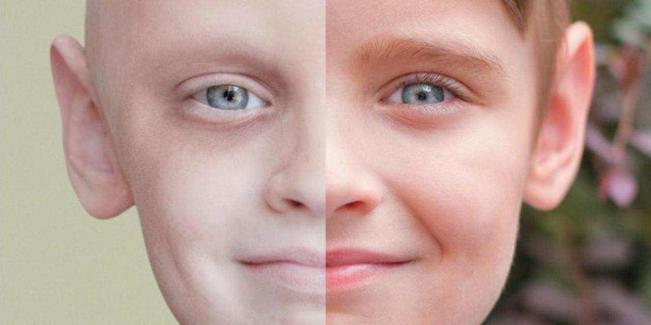 صورة مقدمة عن السرطان , معلومات يجب ان تعرفها عن السرطان