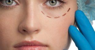 صورة عملية توسيع فتحة العين , جددي اطلالتك بعيون واسعة وجذابة