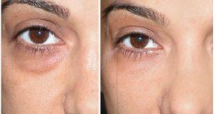 صورة علاج التهاب العين بالشاي , معرفه العلاج الشعبي