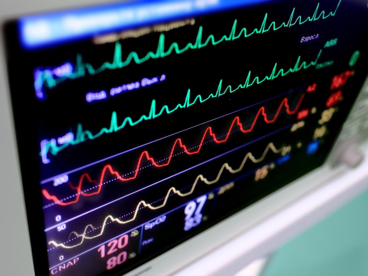 صورة جهاز دقات القلب , كام دقه في الثانيه