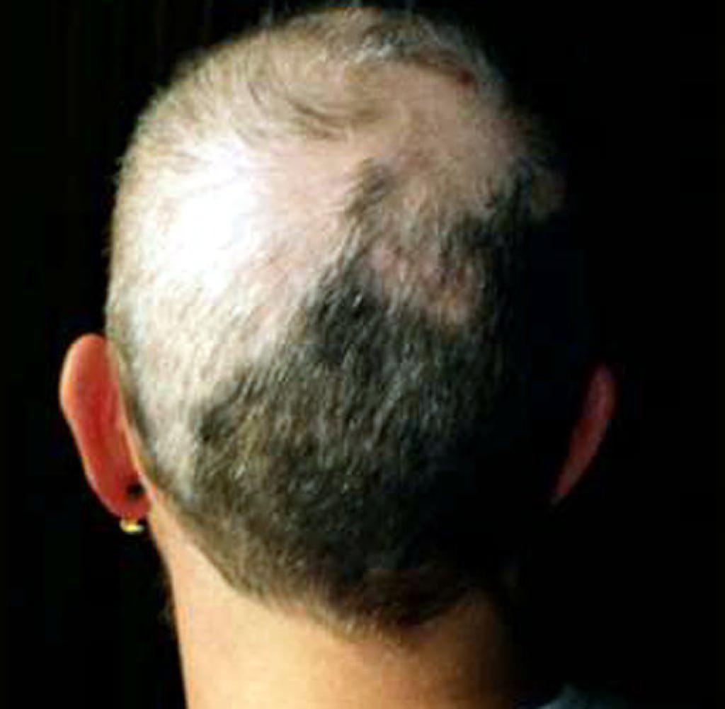 صورة شوك القنفذ لانبات الشعر , علاج ينبت الشعر بسرعة