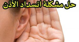 صورة علاج الاذن المسدودة , طرق التخلص من انسداد الاذن بسهولة