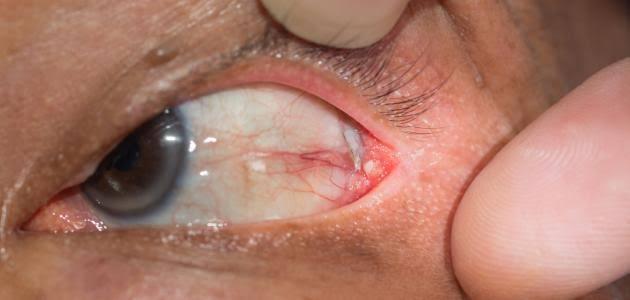 صورة مرض يصيب العين , اشهر الامراض التي تصيب العين في الخريف