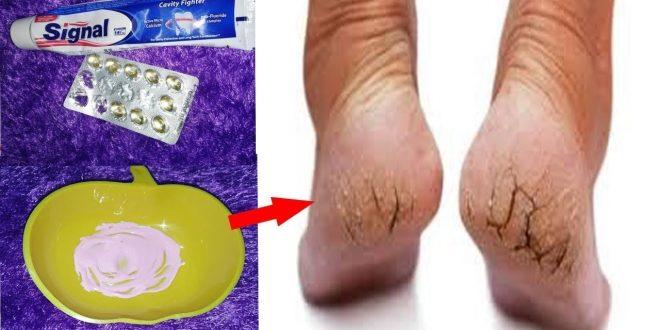 صورة ما هو علاج تشقق القدمين , طريقه سحريه مذهله