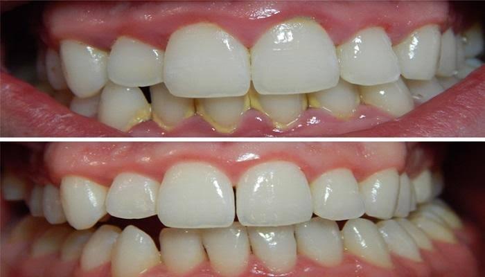 صورة افضل طريقة لازالة الجير من الاسنان , كيف اتخلص من الجير بالاسنان