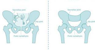 صورة لفتح الرحم وتعجيل الولاده , معلومات عن عملية فتح الرحم