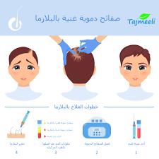 صورة فوائد حقن البلازما للشعر , معلومات عن اهمية البلازما