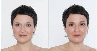 صورة عمليات تجميل العيون قبل وبعد , تصاميم رائعه لافضل عمليات التجميل