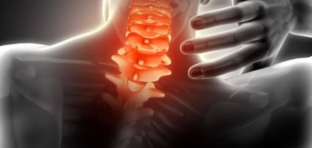 صورة اعراض الديسك في الرقبة , ما هي اعراض مرض الديسك