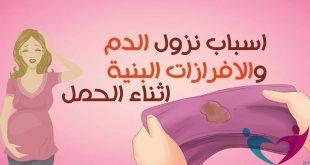 صورة خروج دم اثناء الحمل في الشهر الثاني , سبب نزول دم من المراه في الشهر الثاني