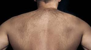 صورة اسباب نمو الشعر الزائد عند الرجال , ما هي اسباب ظهور السعر عند الرجال