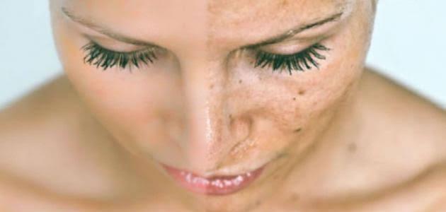 صورة نقط سوداء في الوجه , سبب ظهور النقاط السوداء في الجسم و الوجه
