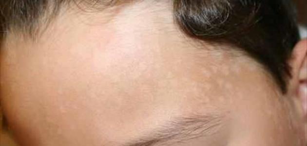 صورة بقع بيضاء في الوجه عند الاطفال الرضع , اسباب البقع البيضاء في الوجه