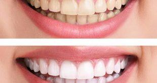صورة اسعار تبييض الاسنان بالليزر , اسعار جلسات تبيض الاسنان في مصر