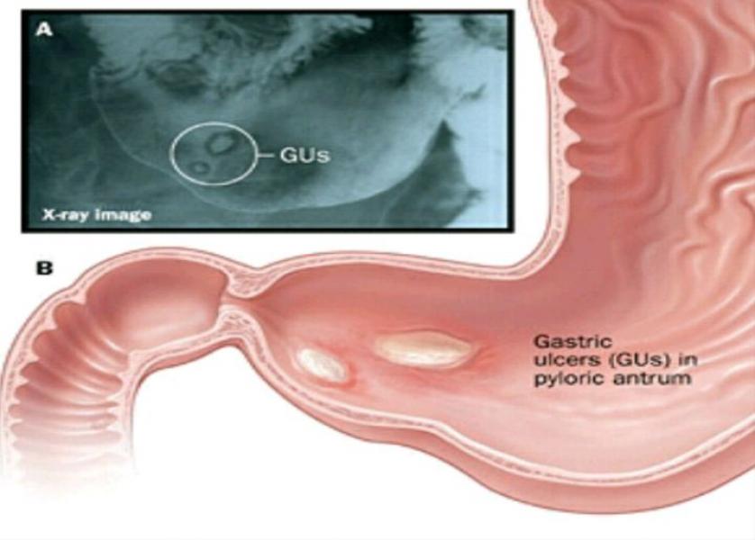 صورة الاعراض الجانبية للعلاج الثلاثي لجرثومة المعدة , الاثار الجانبية للعلاج الثلاثي لجرثومة المعدة