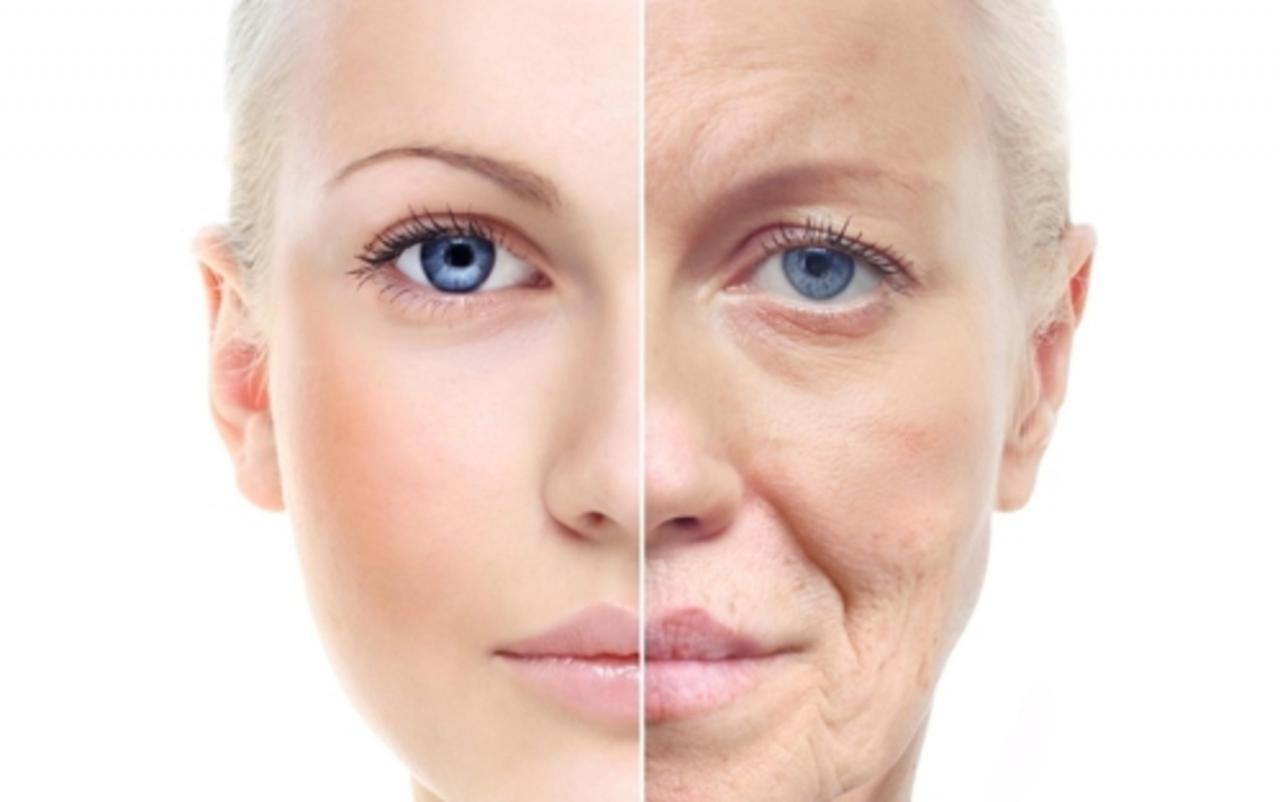 صورة القضاء على تجاعيد الوجه , اسباب وعلاج التجاعيد