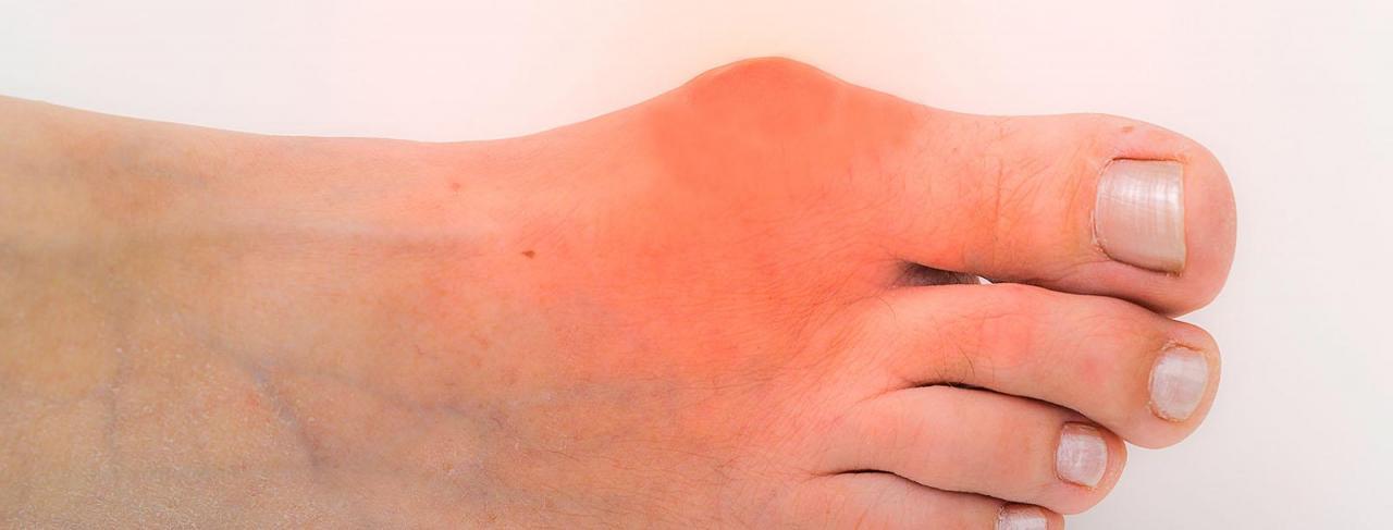 صورة اسباب مرض النقرس , اعراض الاصابة بالنقرس