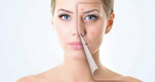 صورة سبب ظهور الحبوب في الوجه , خطوات العناية بالبشرة