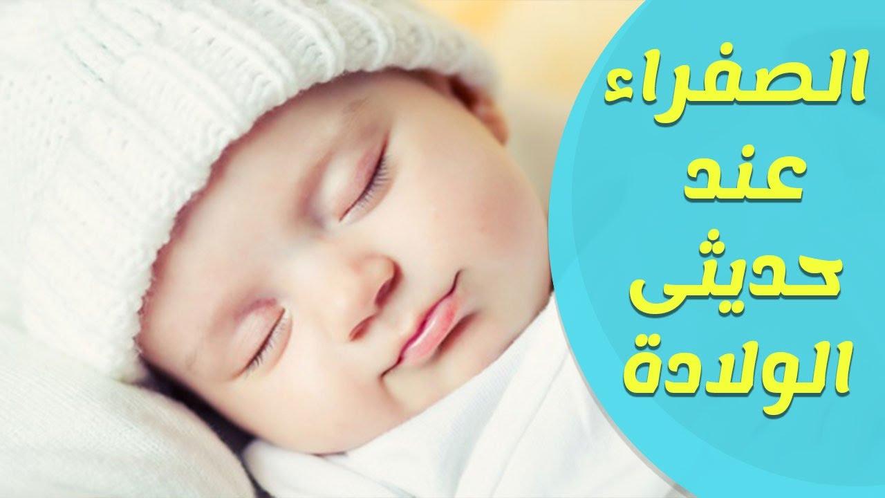 صورة علاج الصفار عند الاطفال , طرق صحيحة لعلاج الصفراء