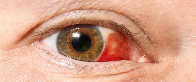 صورة ما اسباب احمرار العين , اجمرار العين و كيف يتكون و علاجاته السريعه