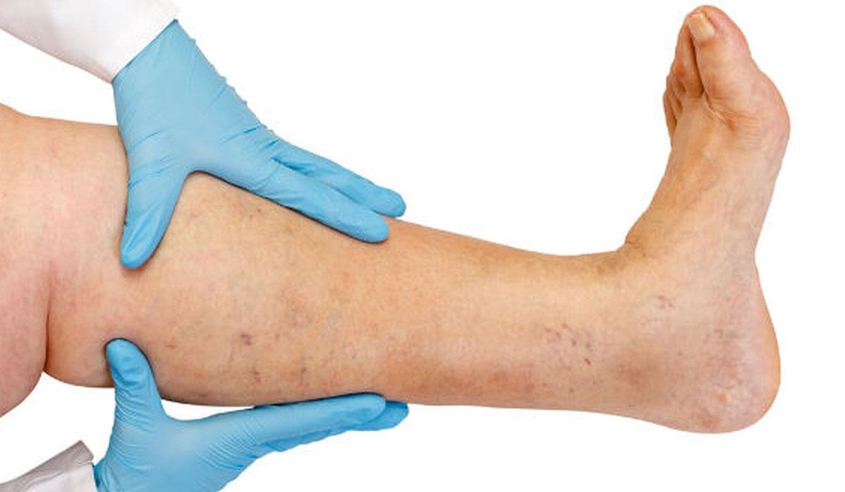 صورة اعراض دوالي الساقين , علامات الاصابة بدوالي الساق