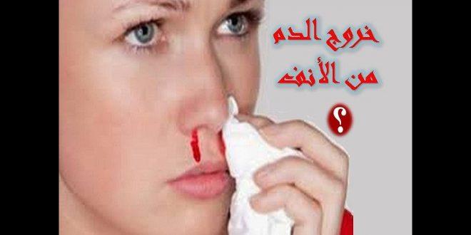 صورة نزول الدم من الانف , اسباب وجود من الانف