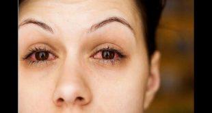 صورة اسباب حكة العين , لماذا دائما توجد حكة في عيني ؟