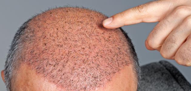 صورة ما بعد زراعة الشعر , اللى بيحصل بعد هذه العمليه الراءعه