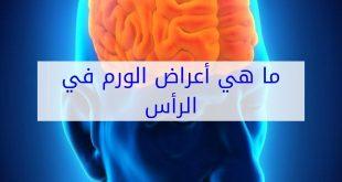 صورة اعراض ورم الدماغ، علامات توضح لنا ورم الدماغ