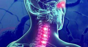 صورة علاج التصلب اللويحي بالاعشاب,اشياء بسيطه تعلاج هذا الداء المناعى