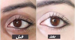 صورة الهالات السوداء حول العين, علاج الهالات تحت العين