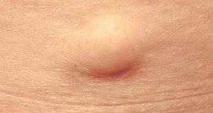 صورة علاج الاكياس الدهنية تحت الابط بالاعشاب , علاج طبيعى رهيب من غير تدخل جراحى
