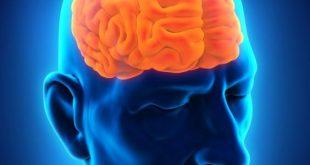 صورة اعراض ورم الراس ,خلايا شاذه بالدماغ