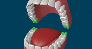صورة عدد الاسنان الطبيعي ، ما هو عدد الاسنان عند البالغين