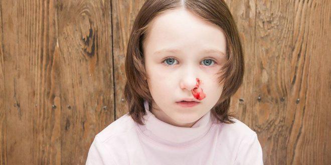 صورة علاج نزيف الانف عند الاطفال , اسباب نزيف الاطفال من الانف